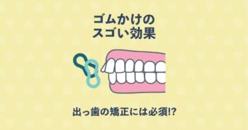 出っ歯は矯正装置とゴムかけで治る!「ゴムかけ」の驚きの効果とは