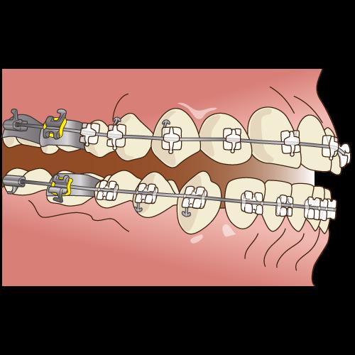 上前歯はクリアスナップ、下前歯はゴムのモジュールです