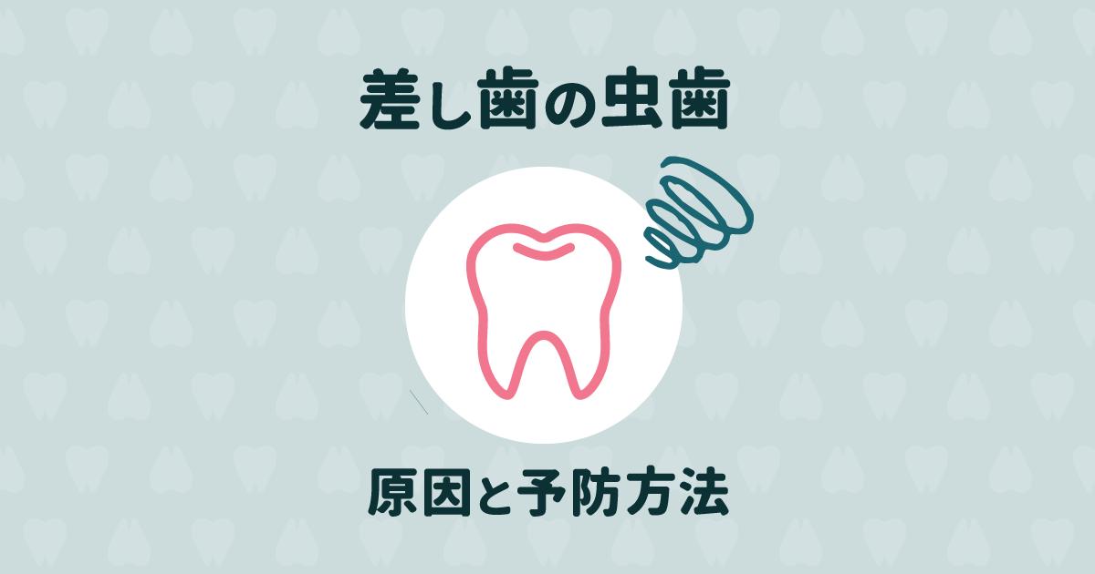差し歯の下にご用心!差し歯が虫歯になる理由と予防法