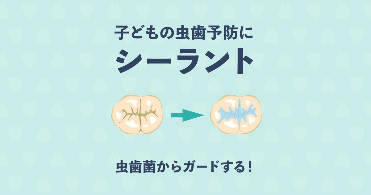 子どもの虫歯予防が簡単にできる!歯医者さんも勧めるシーラントとは?
