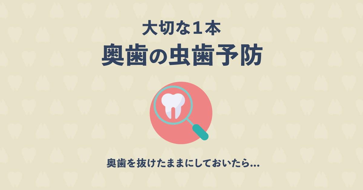 歯が全滅?奥歯が1本抜けたままだと、どうなる?奥歯の虫歯予防が大切!