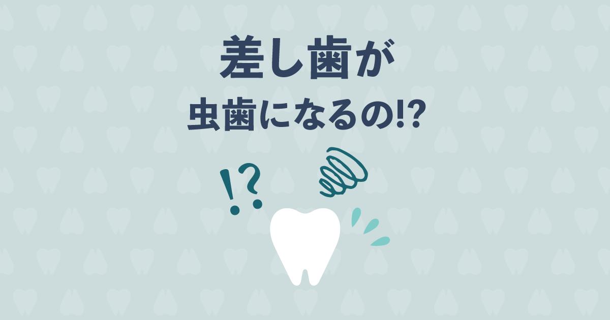 知らなかった!まさか「差し歯」が虫歯になるなんて!?その原因と予防法