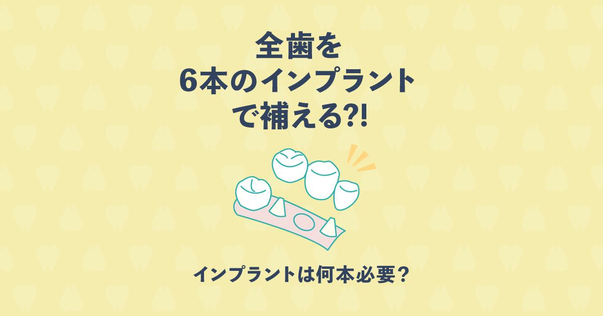 インプラントは何本必要?全歯を6本のインプラントで補えるって本当?