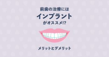 【歯科医 監修】前歯の治療はインプラントが良い!メリットとデメリット