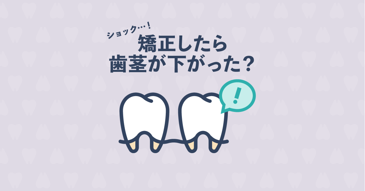 歯列矯正をしたら歯茎が下がった?歯茎が下がる歯肉退縮の原因と改善法