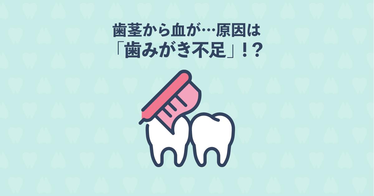 歯茎から血が出た!歯科矯正中に多いトラブルの原因は「歯磨き不足」
