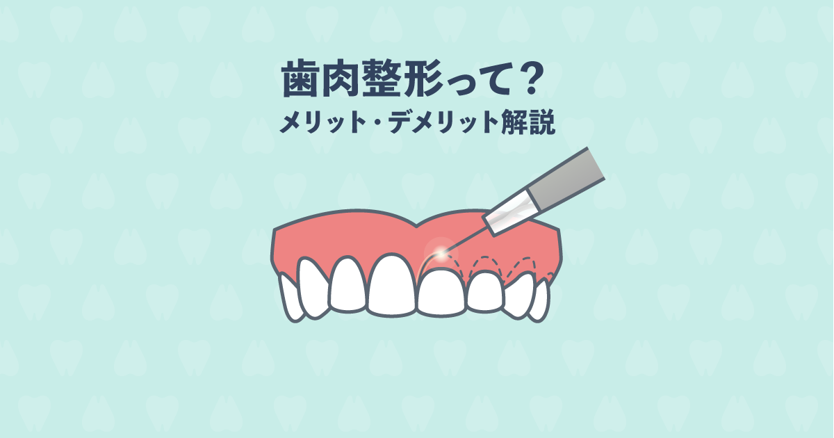 ガミースマイルの悩み解消!歯茎を切る歯肉整形とは?デメリットも解説