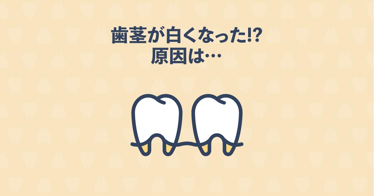 矯正治療中の歯茎が白くなるのは骨隆起や膿が原因かも!対処法をご紹介