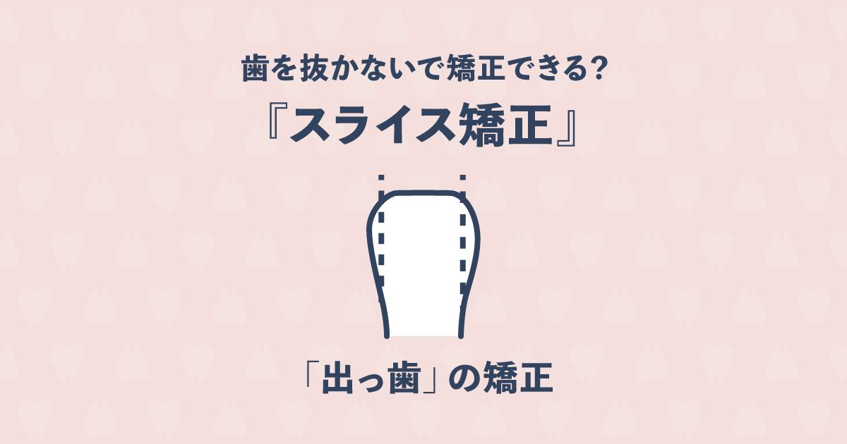 歯を抜かないで出っ歯を矯正できる?「スライス矯正」で非抜歯矯正を実現