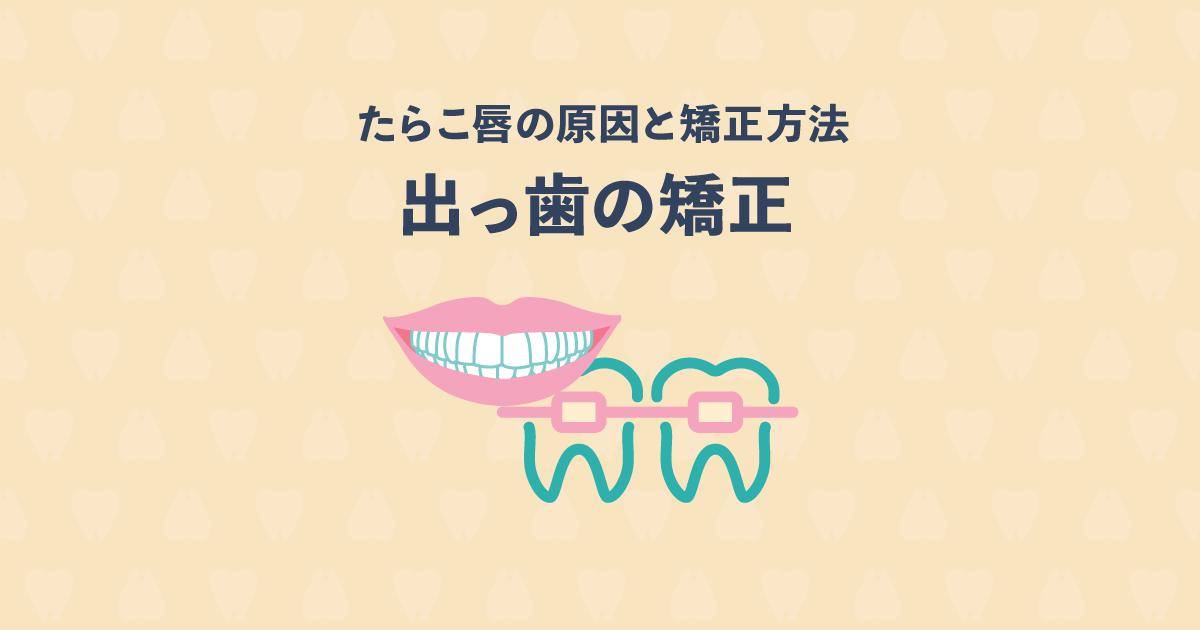 たらこ唇は出っ歯を矯正すれば改善する?たらこ唇の原因と矯正方法