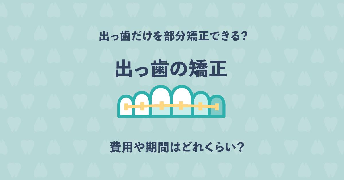 出っ歯だけを部分矯正することはできる?費用や期間はどれくらい?