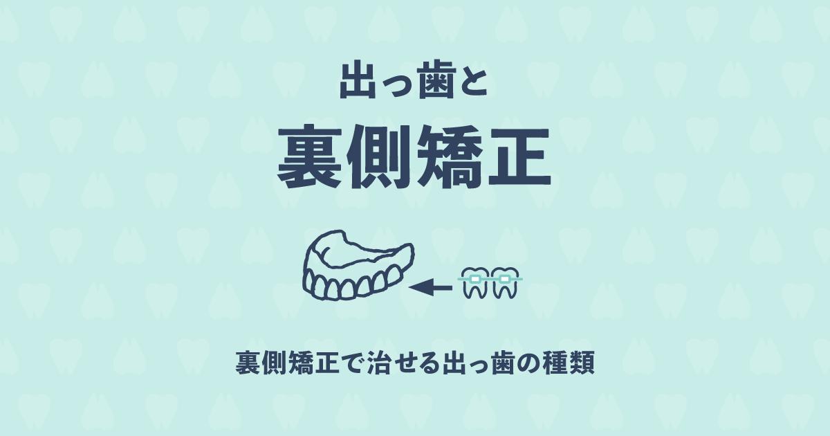 出っ歯を歯の内側で矯正するメリットとデメリットを教えて!