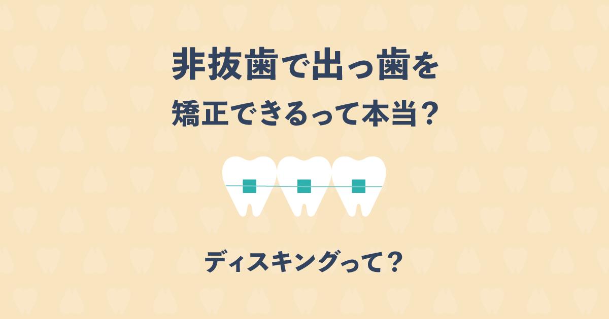 ディスキングで歯の形を整えれば、非抜歯で出っ歯を矯正できるって本当?