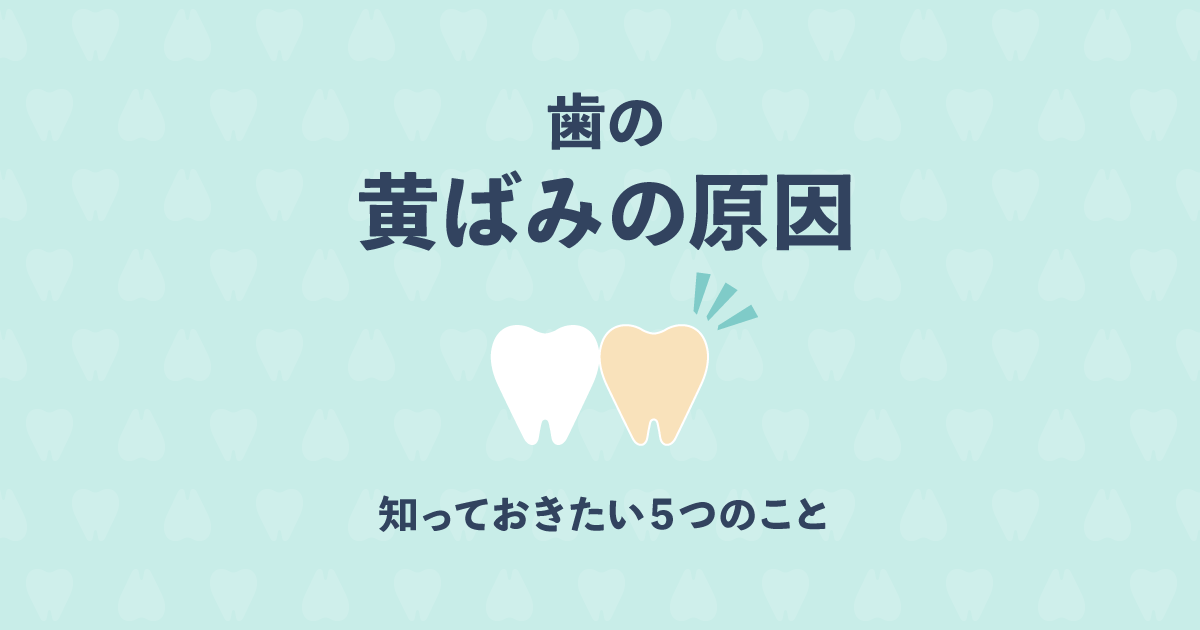 本当?気になる歯の黄ばみの原因は全部で5種類もある