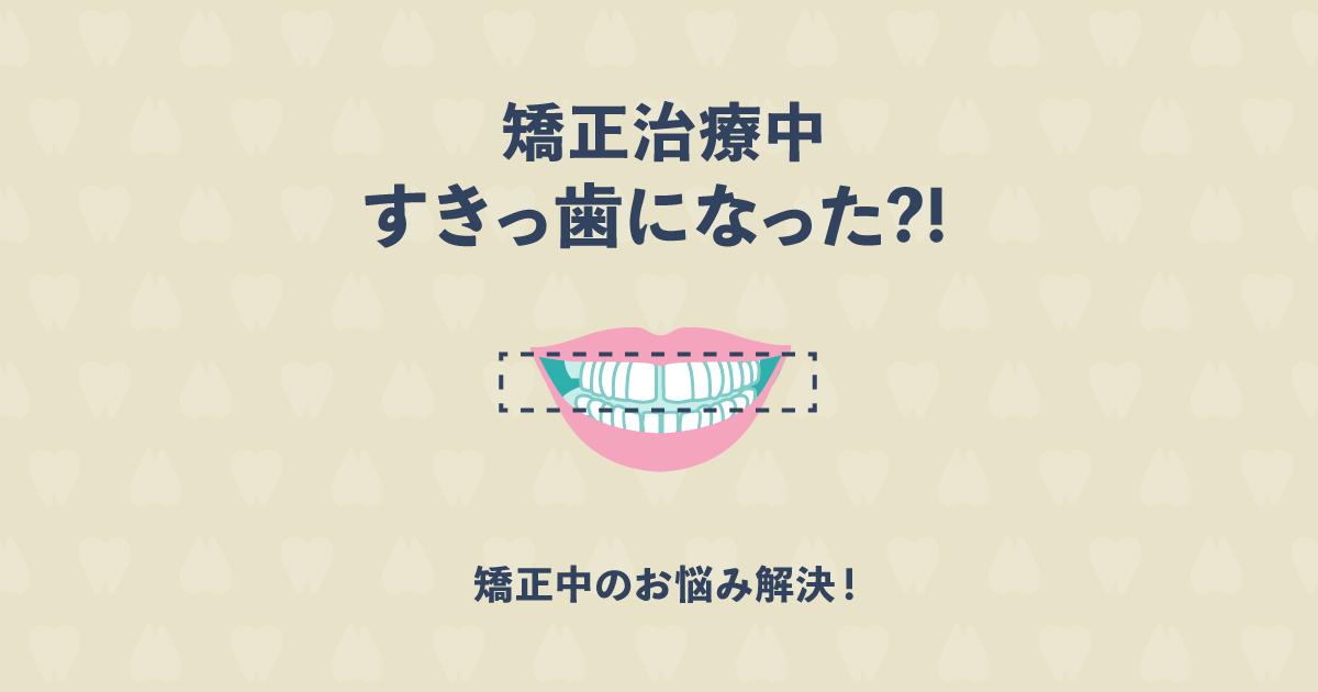 矯正中にすきっ歯になったけどこれって失敗?矯正中のよくあるお悩み