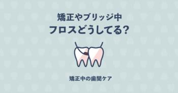 歯列矯正やブリッジにおすすめのフロスとは?簡単に使いやすい6つを紹介