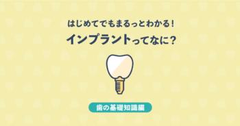 【基礎知識編】インプラントってなに?初めてでもまるごと分かる!