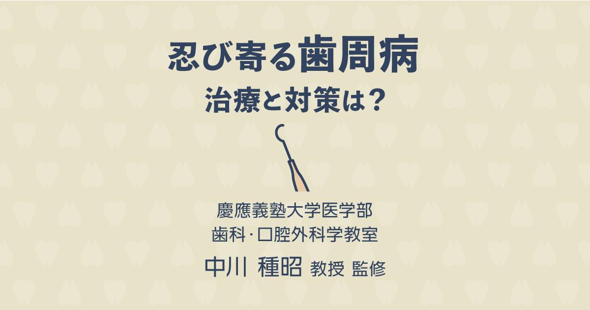 【歯科医師監修】忍び寄る歯周病 治療と対策は?