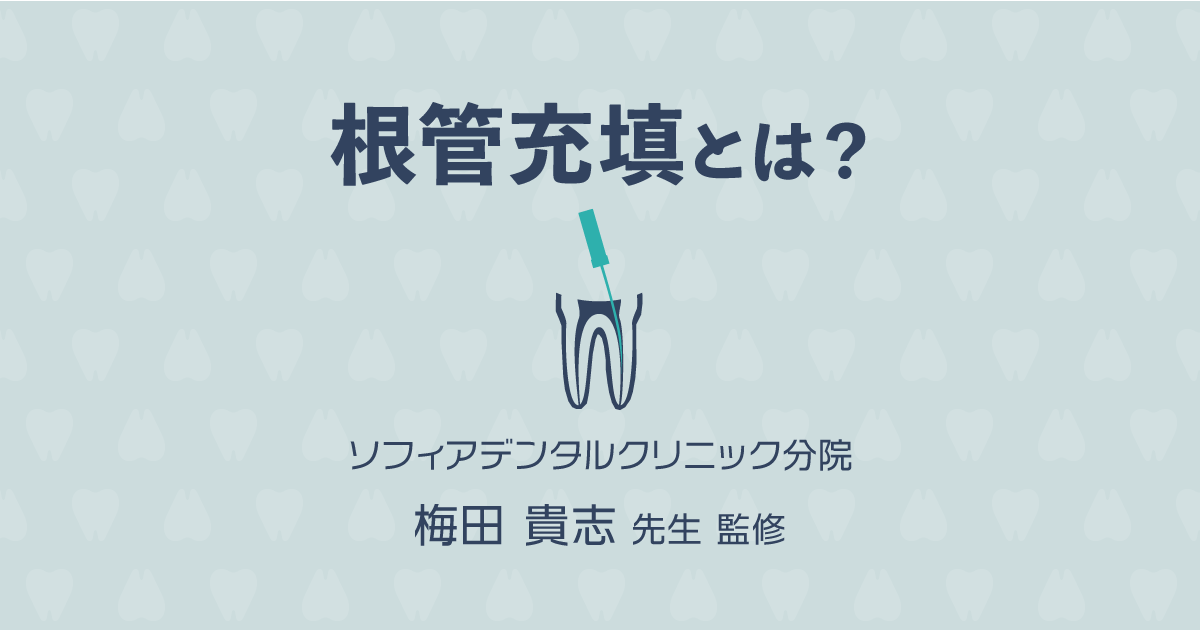 【歯科医師監修】根管充填とは?