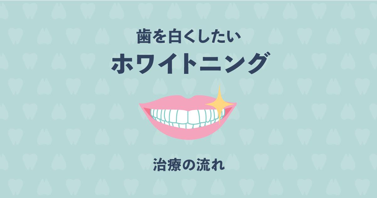 歯を白くしたい!ホワイトニング治療の流れをわかりやすく解説