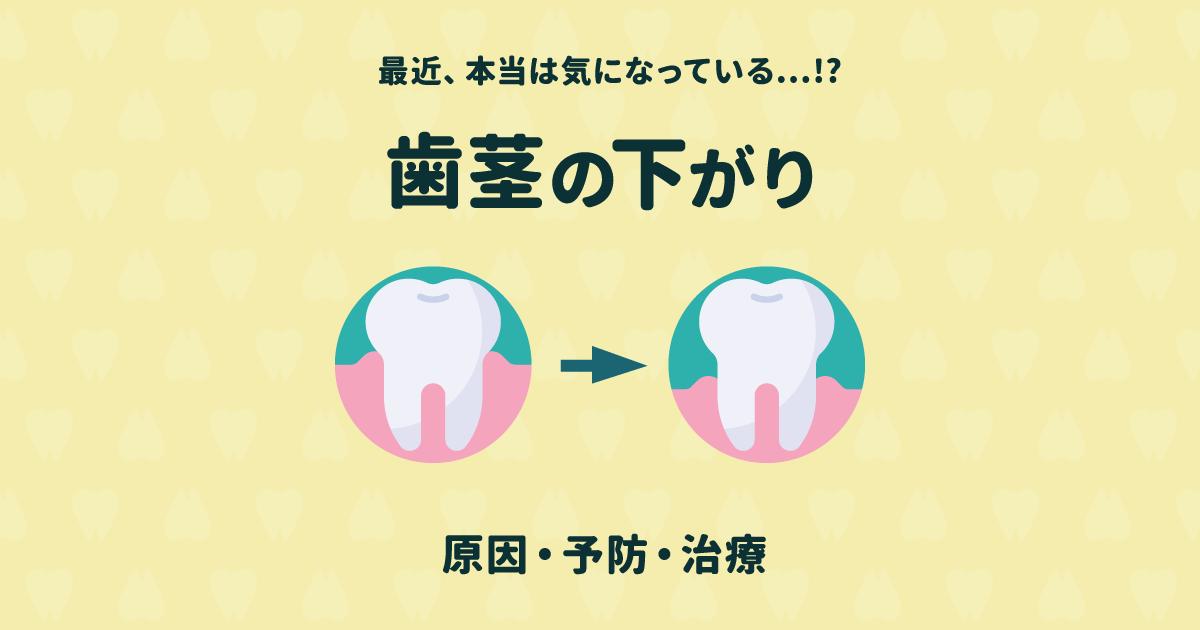 最近歯茎が下がってきたかも?5つの原因と予防法・治療法