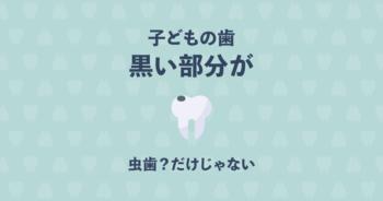 子どもの歯が黒いと感じたら!虫歯じゃなくても黒くなる4つの理由