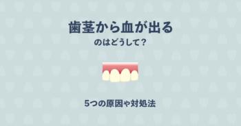 歯茎から血が出るのはどうして?5つの原因や対処法について