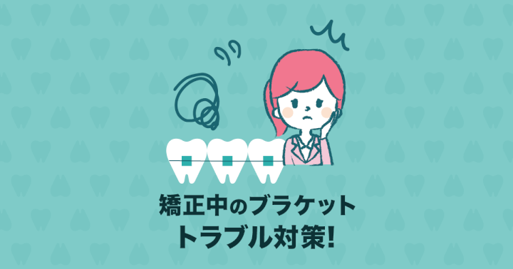 歯列矯正中のブラケットが取れやすい!ブラケットのトラブル5つの原因