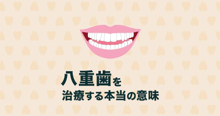 【八重歯の矯正治療】八重歯を治療するメリットと治療方法