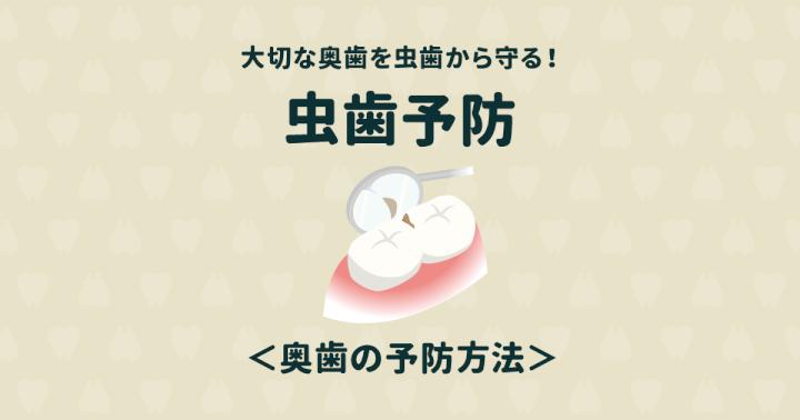 奥歯の虫歯予防が重要!奥歯を失くすと歯が全滅するかもしれない!?