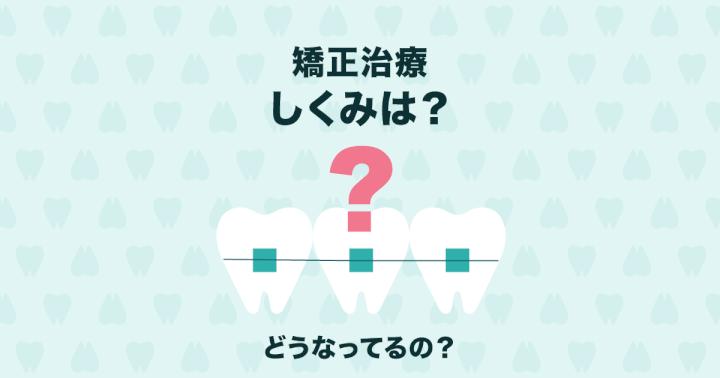 どうして歯列矯正で歯が動くの? 矯正の仕組みや種類をご紹介!