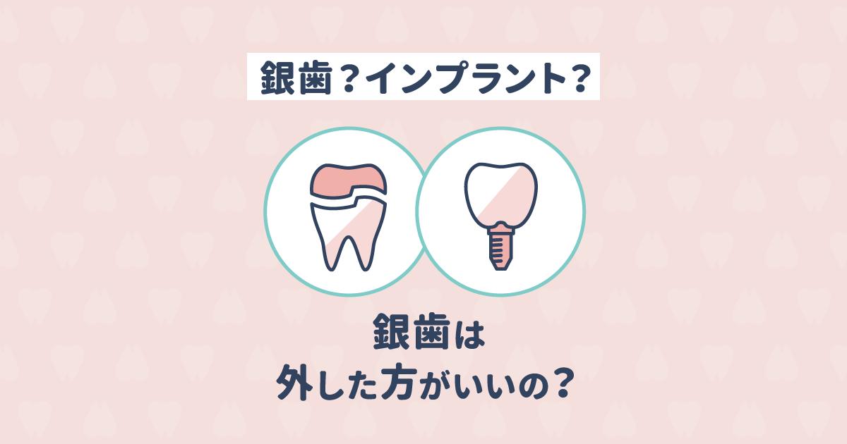 銀歯とインプラント、どちらがおすすめ?銀歯は取った方がいい?
