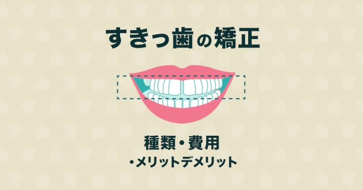 すきっ歯の矯正方法|保険適用や費用、メリットデメリットを説明します!