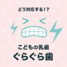 子どものグラグラした歯はどうしたらいい?グラグラ乳歯への正しい対応