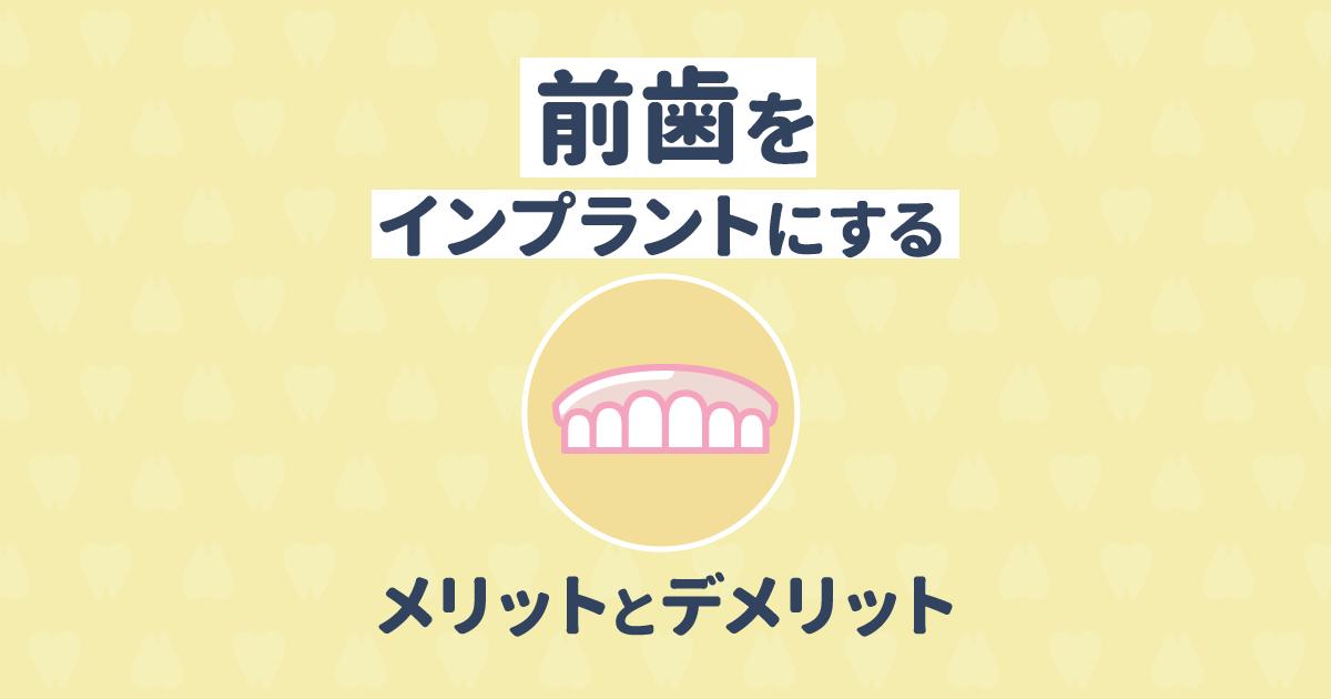 【歯科医監修】前歯をインプラントにするメリットとデメリット
