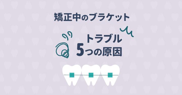 歯列矯正中のブラケットは取れやすい?ブラケットのトラブル5つの原因