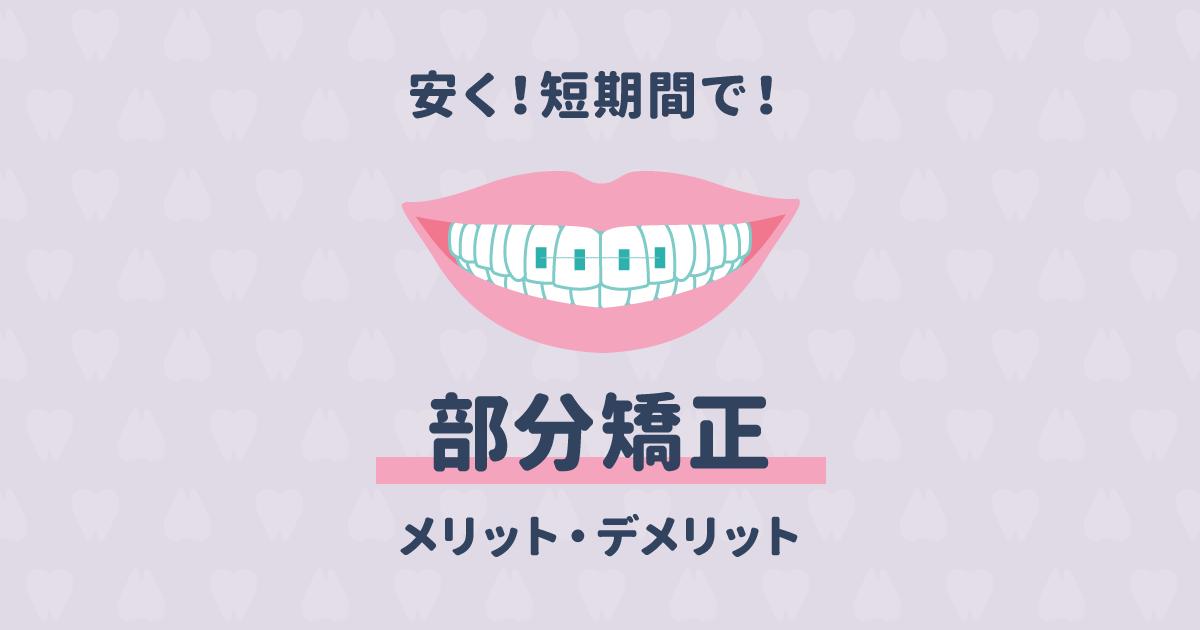 部分矯正で安く歯並びを治せるって本当?リスクについても知りたい!
