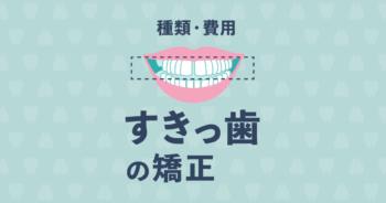 矯正ですきっ歯を治すときの治療法の種類や費用を説明します!