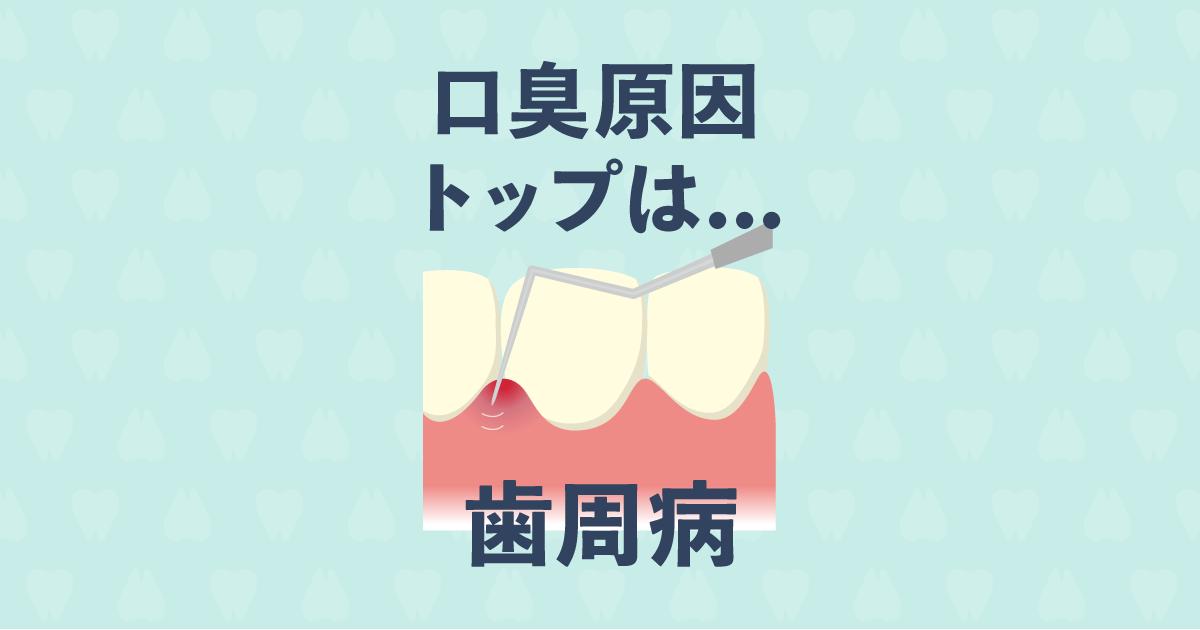 口臭のほとんどの原因は歯周病!歯周病ケアで口臭予防する5つの方法