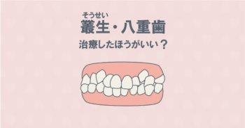 叢生(そうせい)・八重歯は矯正すべき?治療の疑問にお答えします